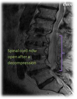 spinal-stenosis-2