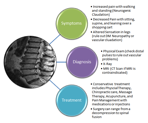 Diagnosis & Treatment of Spinal Stenosis » Hamilton Orthopaedic